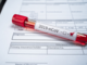 Coronavirus. Pronto il protocollo d'intesa Case di Riposo: ruolo chiave degli enti provinciali